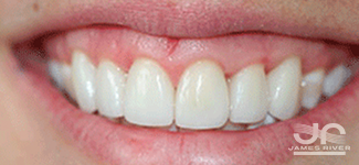 after porcelain veneers Richmond va dentist