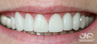 after crown lengthening Richmond va dentist